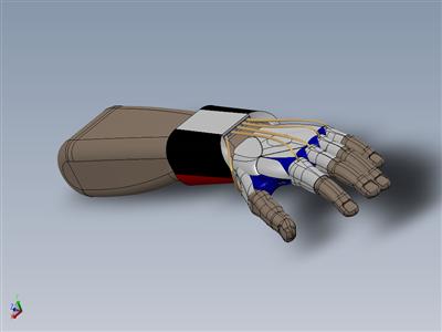 手震减速器